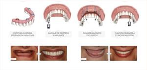 all-on-4-dientes-fijos-en-un-solo-dia